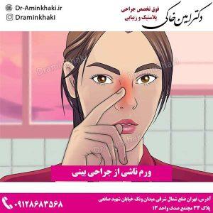 ورم ناشی از جراحی بینی