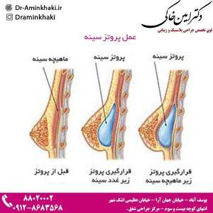 عمل پروتز سینه