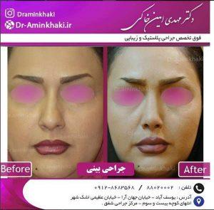 بینی گوشتی بعد از جراحی