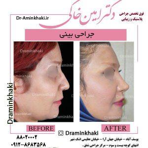 جراحی کوچک کردن بینی