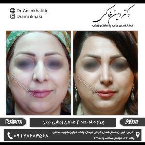 جراحی بینی 163