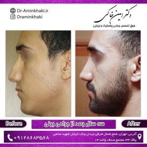 جراحی بینی 170