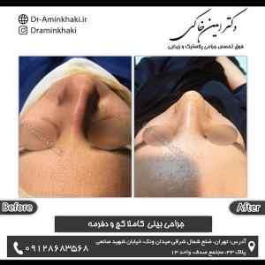 جراحی بینی 183
