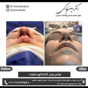 جراحی بینی 184