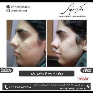 جراحی بینی 188 (1)