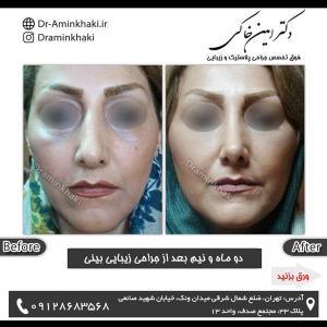 جراحی بینی 191
