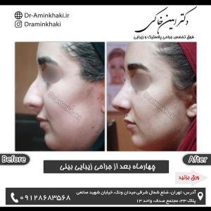 جراحی بینی 198