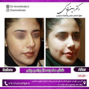 جراحی بینی 201 (1)