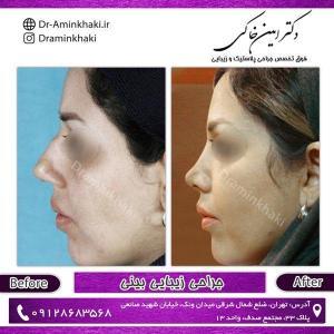 جراحی بینی 210