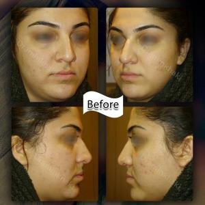 جراحی بینی 219 (1)