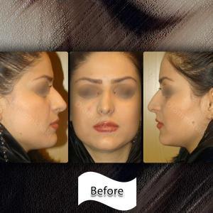جراحی بینی 220