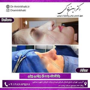 جراحی بینی 223