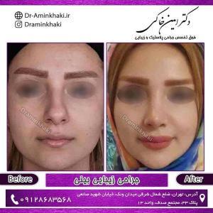 جراحی بینی 235
