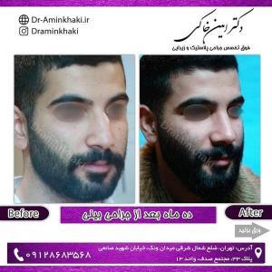 جراحی بینی 239