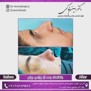 جراحی بینی 268