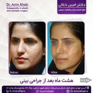 جراحی بینی 304