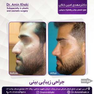 جراحی بینی 309