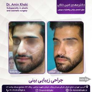 جراحی بینی 310