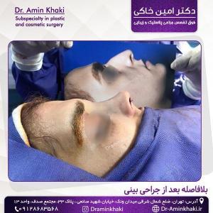جراحی بینی 314