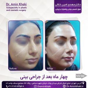 جراحی بینی 320