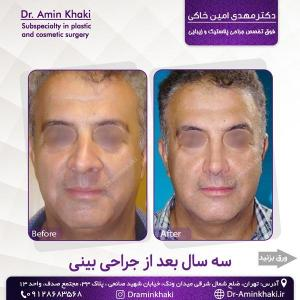 جراحی بینی 324