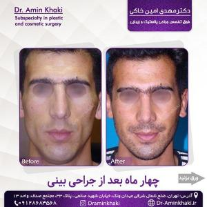 جراحی بینی 328