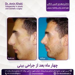 جراحی بینی 330