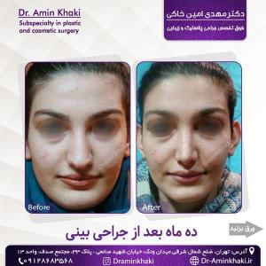 جراحی بینی 331