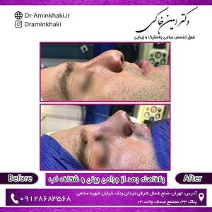 جراحی بینی 56