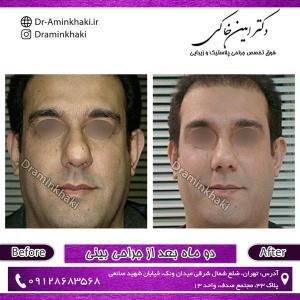 جراحی بینی 63