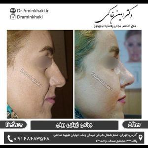 جراحی بینی 70
