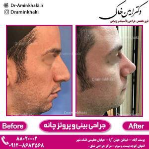 جراحی-بینی-و-پروتز-چانه-1
