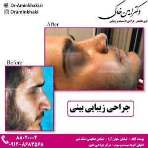 جراحی-زیبایی-بینی-2