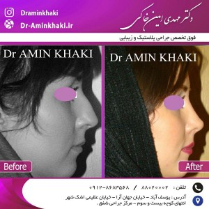جراحی بینی -دکتر مهدی امین خاکی